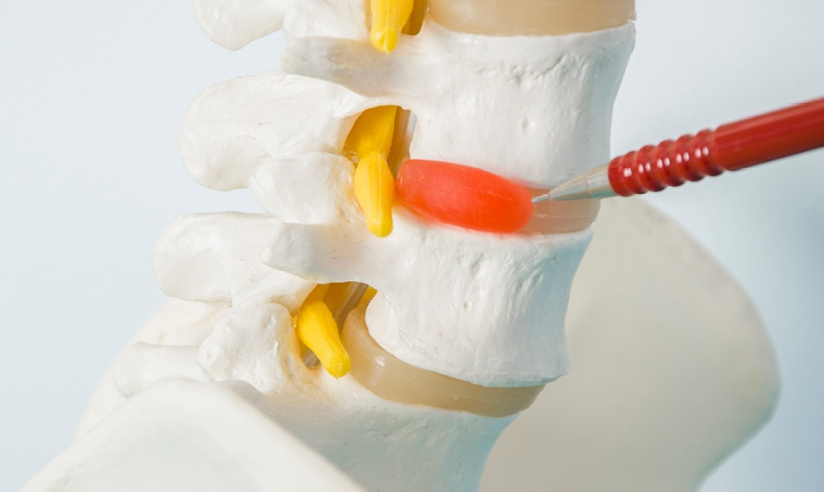 Herniated Disc at Elite Wellness & Sports Medicine Center